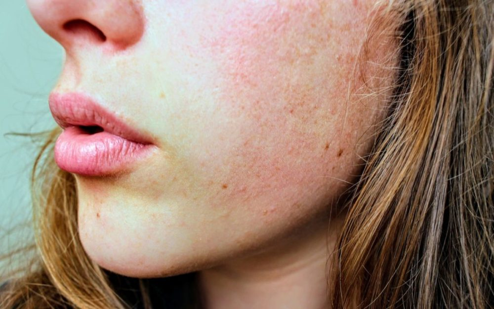 Fungal Acne Its Solutions To Look For